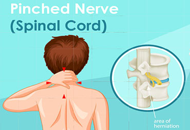 Pinched nerve care