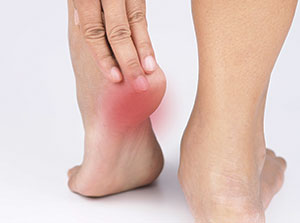 Patient suffering from plantar fasciitis