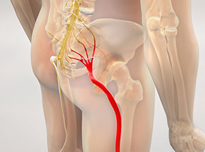 Patient suffering with sciatica