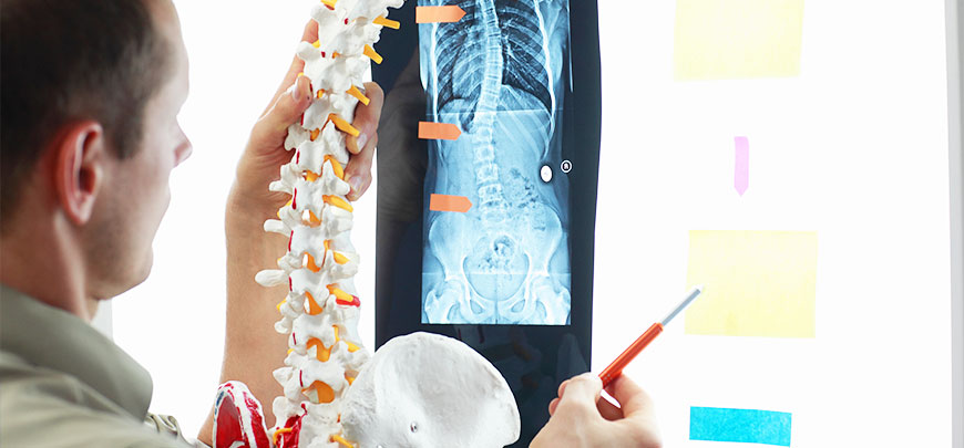 Doctor examining spine x-rays for corrective care